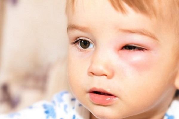 bệnh đau mắt đỏ ở trẻ em