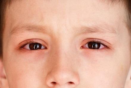 Đau mắt đỏ ở trẻ em: Nguyên nhân và triệu chứng