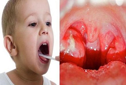 Trẻ bị viêm amidan: Cách chăm sóc và phòng tránh