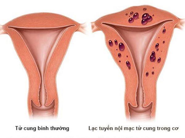 nguyên nhân lạc nội mạc tử cung